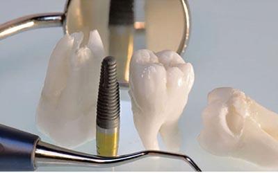 چه کسانی باید ایمپلنت کنند؟ dental3