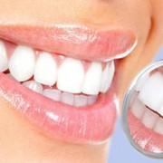 عواملی كه بر روی لبخند مؤثر است؟ dental4 180x180
