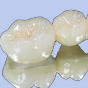 روکش های زیرکونیا dental5 180x180