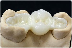 dental8  روکش های زیرکونیا dental8