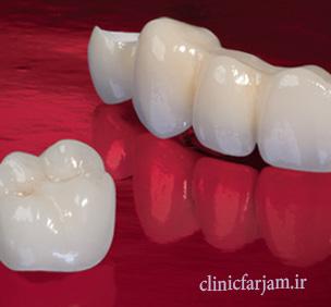بهترین نوع روکش دندان