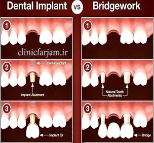 مزیتهای ایمپلنت نسبت به بریج  مزیتهای ایمپلنت نسبت به بریج brigeimplant  دندانپزشکی فرجام brigeimplant