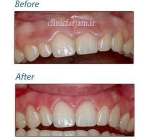 اصلاح بیرون بودن بیش از حد لثه در لبخند  مزیتهای ایمپلنت نسبت به بریج 123  دندانپزشکی فرجام 123