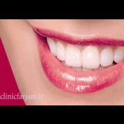 لبخندی زیبا و بدون نقص  روشهایی جهت بدست آوردن لبخندی زیبا و بدون نقص labkhand 180x180