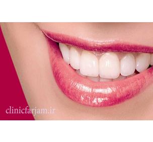 لبخندی زیبا و بدون نقص  مزیتهای ایمپلنت نسبت به بریج labkhand  دندانپزشکی فرجام labkhand