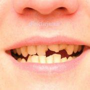 شکستگی دندان  با دندان شکسته کودک چه کنیم ؟ dandan shekaste 180x180