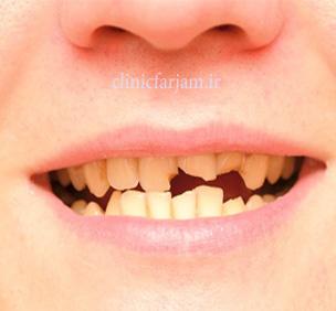 شکستگی دندان  مزیتهای ایمپلنت نسبت به بریج dandan shekaste  دندانپزشکی فرجام dandan shekaste