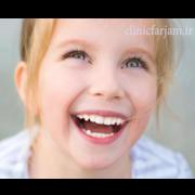 زود افتادن دندان شیری  آیا در همه موارد زود افتادن دندان شیری باید فضا نگهدار استفاده شود؟ fazanghdar 180x180