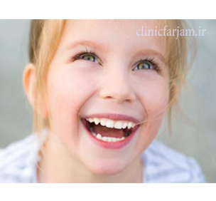زود افتادن دندان شیری  مزیتهای ایمپلنت نسبت به بریج fazanghdar  دندانپزشکی فرجام fazanghdar