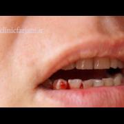 خونریزی لثه  چرا موقع مسواک زدن ، لثه هایتان خونریزی می کند؟ lase khonrizi 180x180