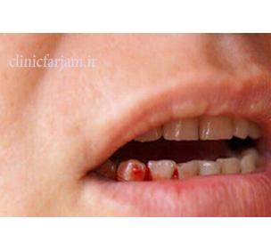 خونریزی لثه  مزیتهای ایمپلنت نسبت به بریج lase khonrizi  دندانپزشکی فرجام lase khonrizi